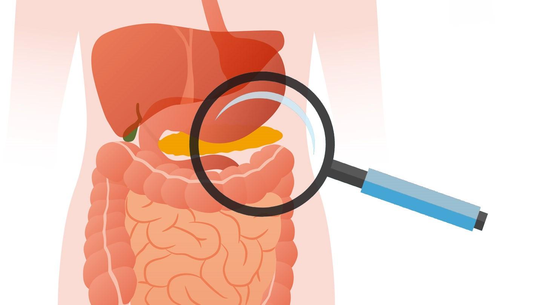 oxiuri tratamento gastric cancer esmo 2019