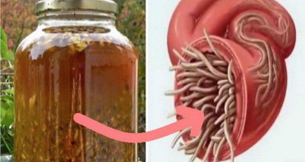 paraziti in organism simptome
