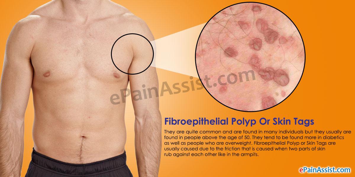 fibroepithelial papilloma causes