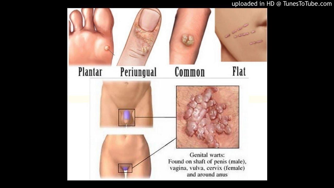 Vegetatiile veneriene - Negii genitali