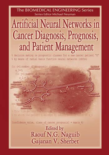 cancer san prognostic