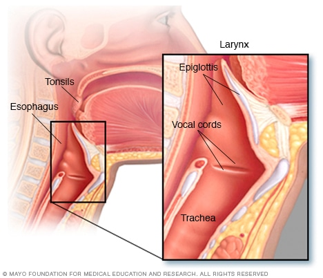 hpv causa cancer na garganta