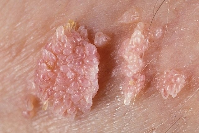 virus del papiloma humano verrugas en el ano filiform wart on eyelid treatment