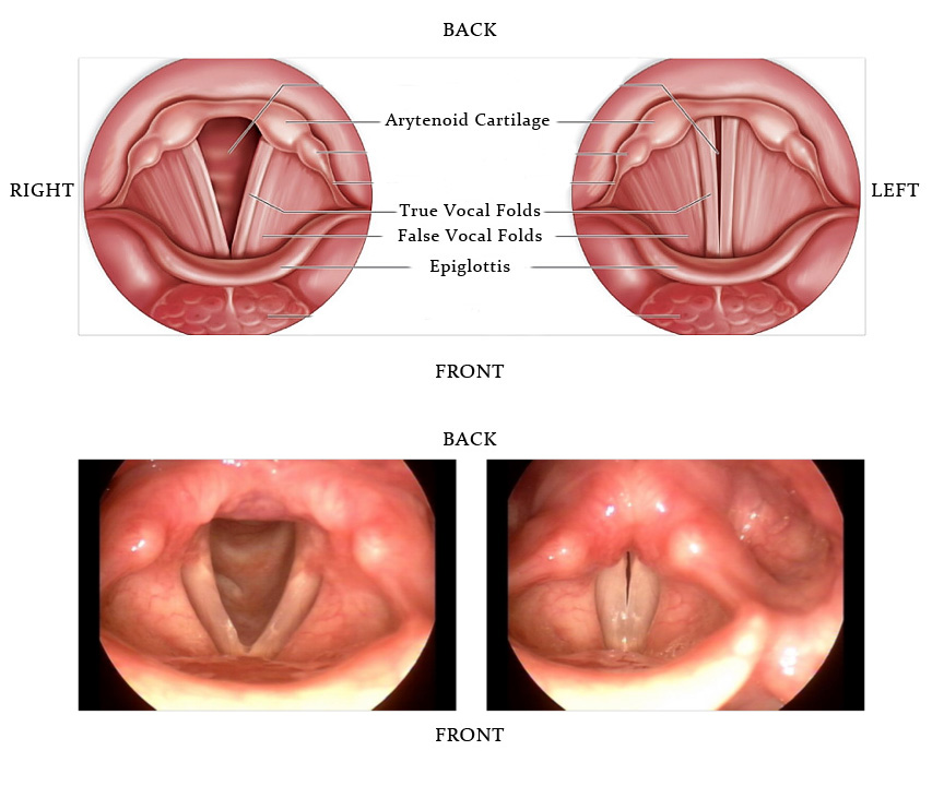 recurrent respiratory papillomatosis vocal folds)