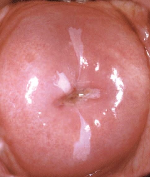 virus hpv utero)