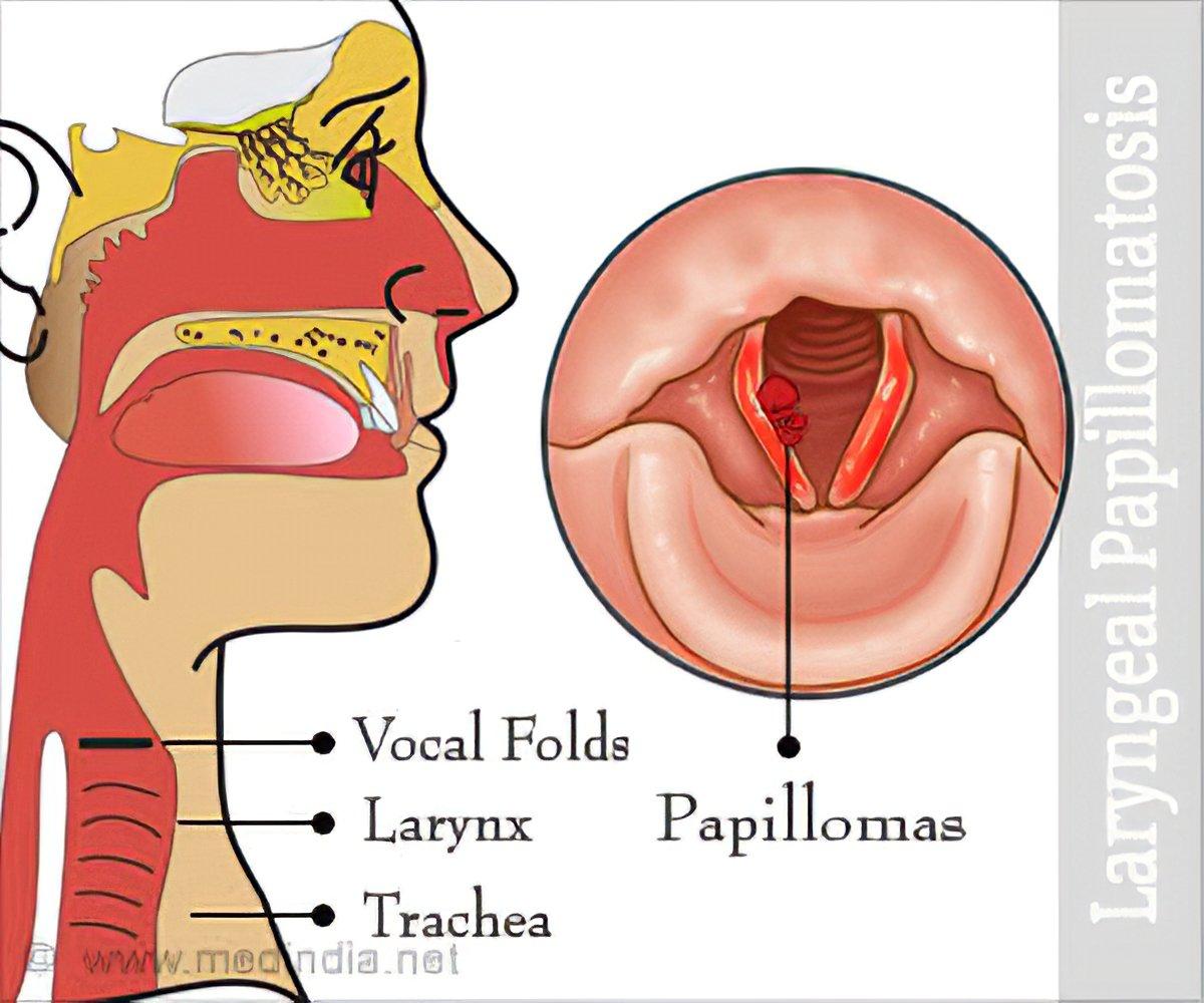 papillomatosis in the larynx)