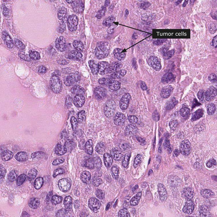 Diagnostic Pathology: Molecular Oncology: Mohammad A. Vasef · | Books Express