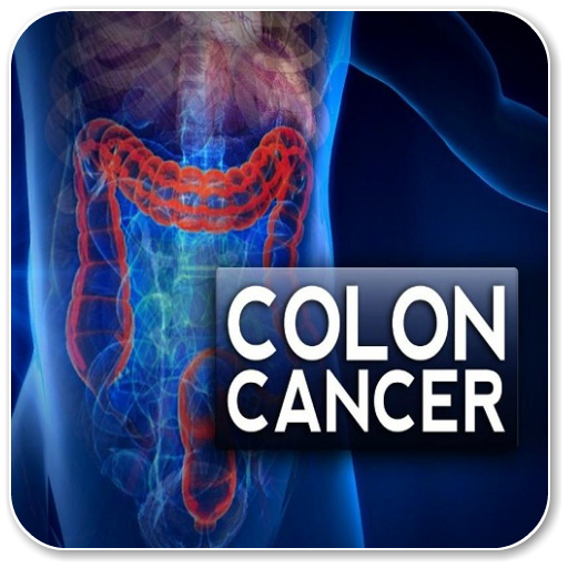 cancer colorectal cauze
