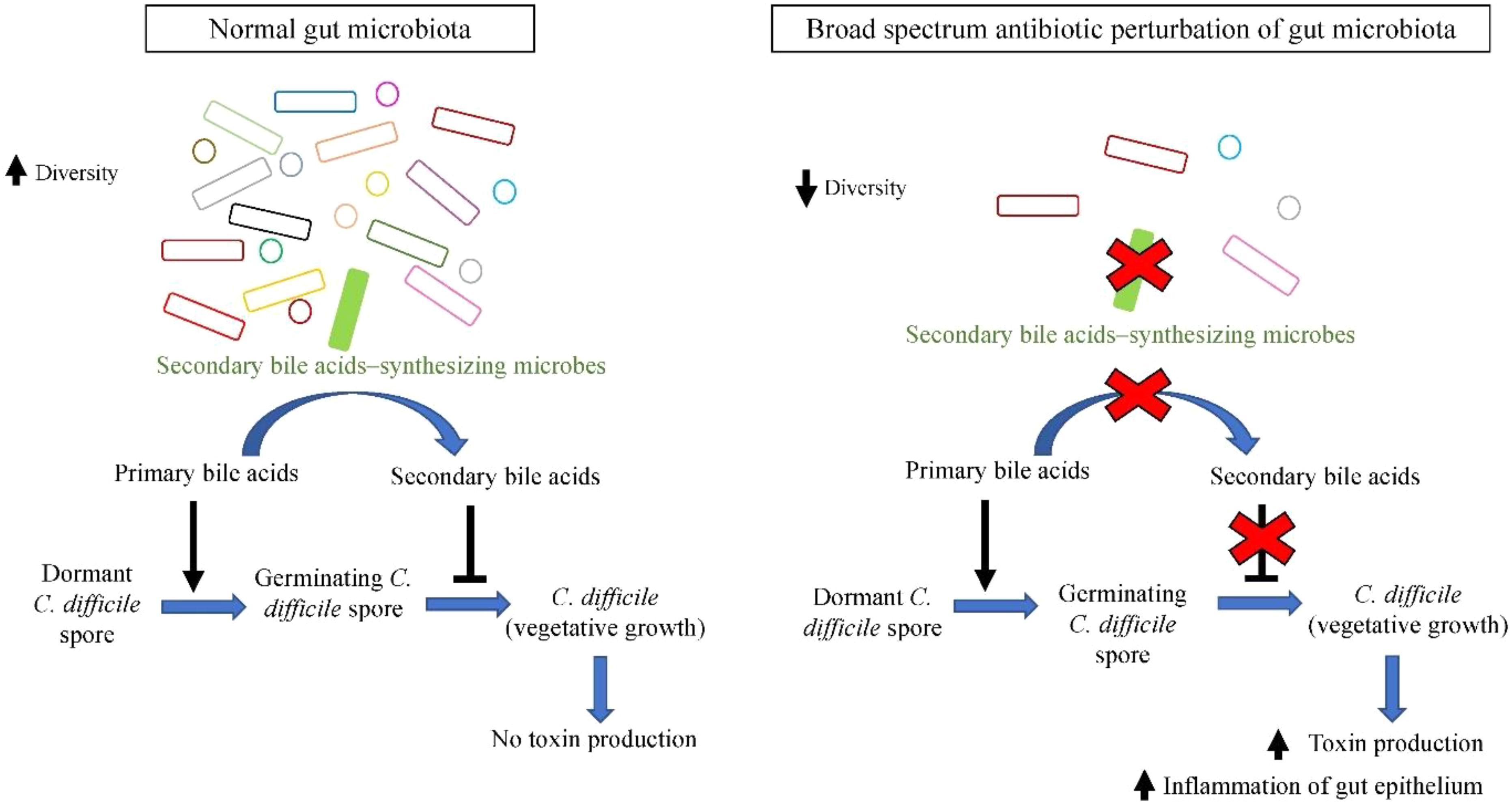 Microbiota intestinală schimbă paradigmele în sindromul intestinului iritabil