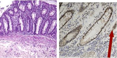 Adenocarcinom de colon dieta sigmoid