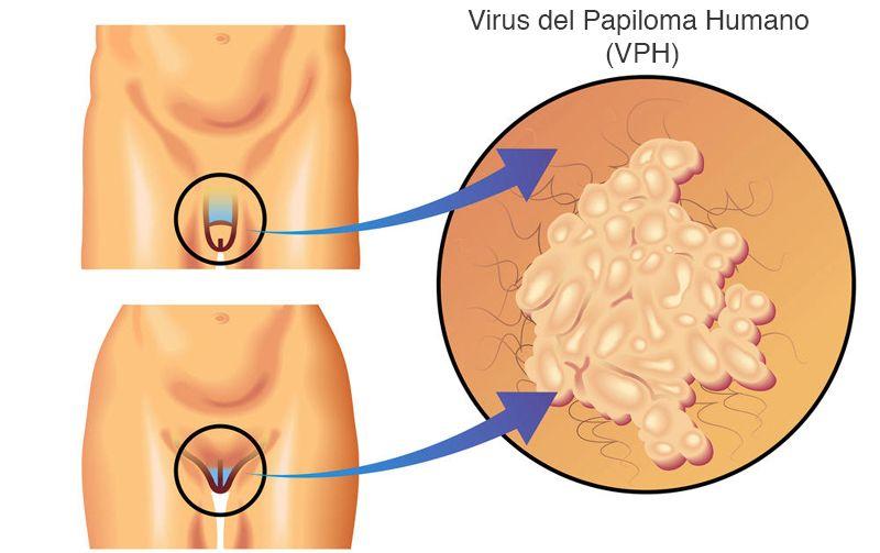 virus del papiloma en humano)