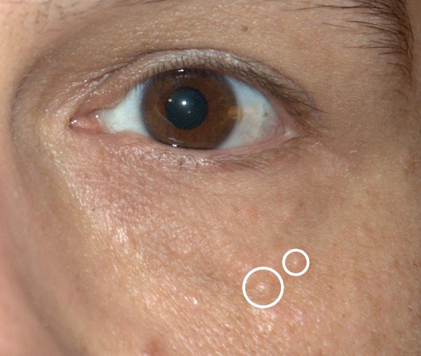 squamous papilloma eyelid icd 10)