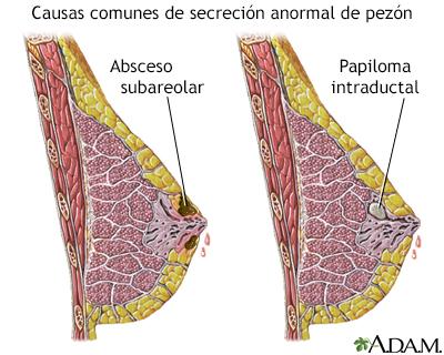 Papilom intraductal de sân: Cauze posibile & Diagnostice diferențiale   Symptoma®