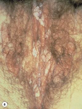 condyloma acuminata ce inseamna)