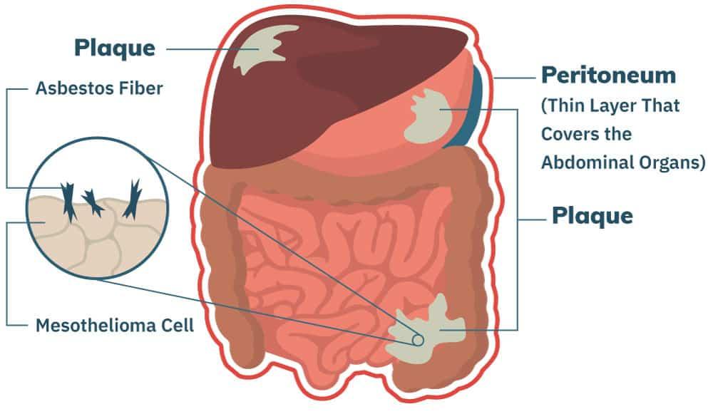 peritoneal cancer not responding to chemo deparazitare naturala