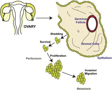 cancerul ovarian epitelial)