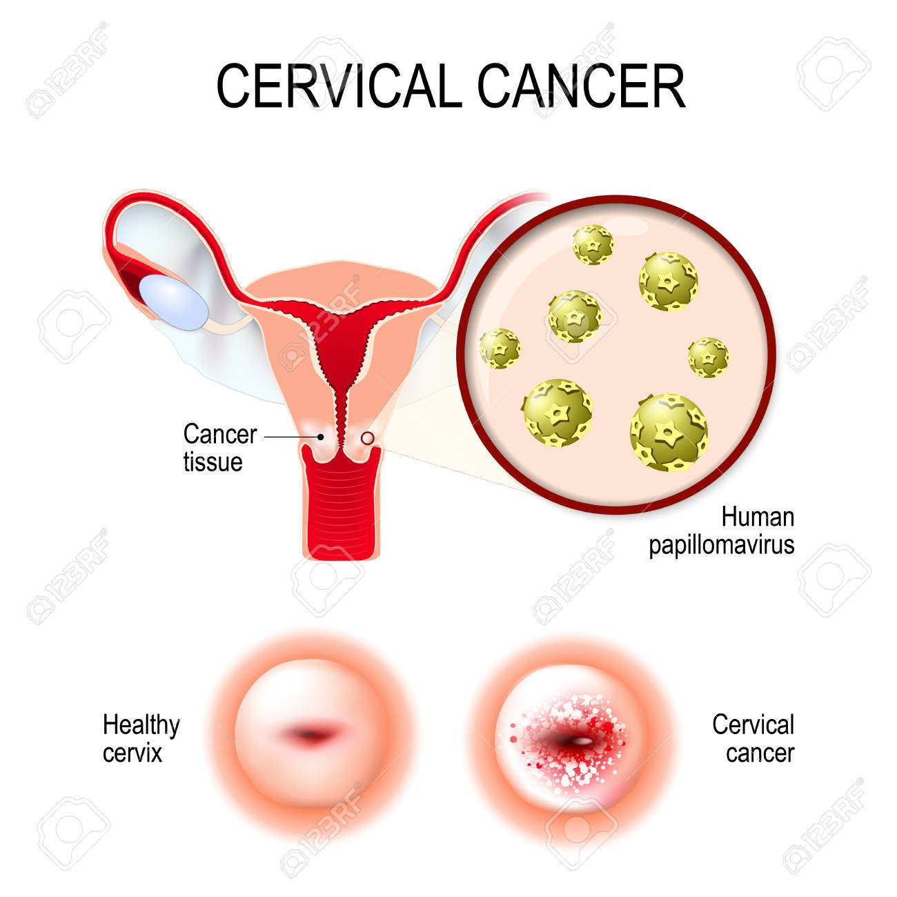 hpv in carcinoma cervix