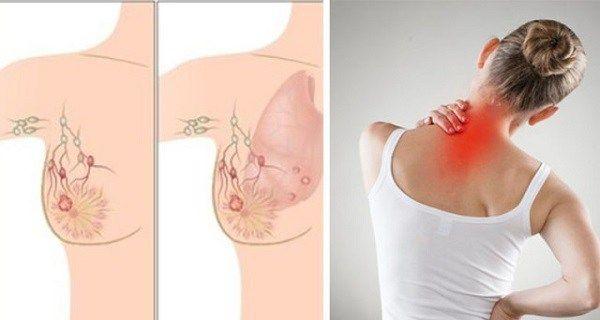 cancer de san avansat simptome