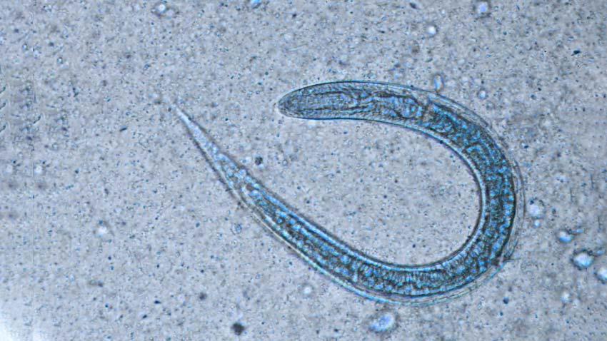 enterobius vermicularis medscape)