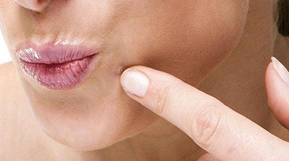 human papillomavirus cause warts)