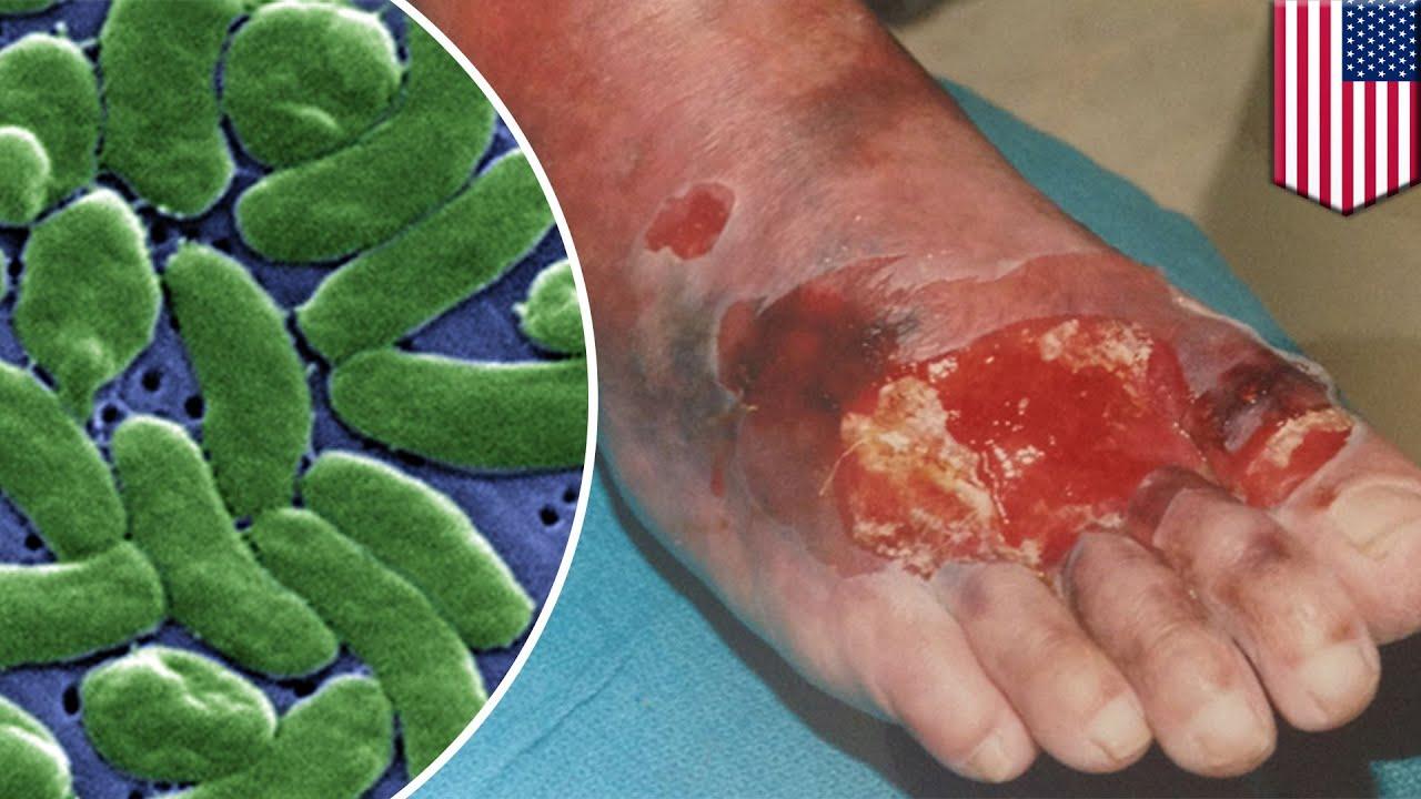 bacterie qui mange la peau