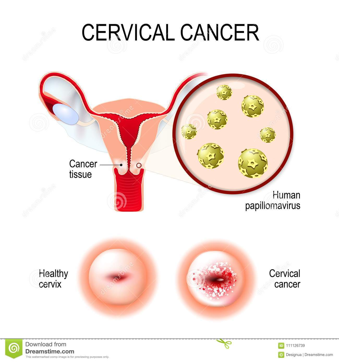 [Cervugid ovules in cervico-vaginal infections and cervix uteri precancerous conditions treatment]