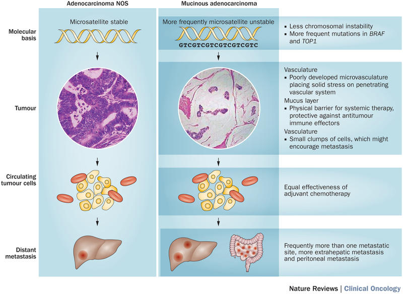 hepatocellular cancer interferon familial cancer vs hereditary