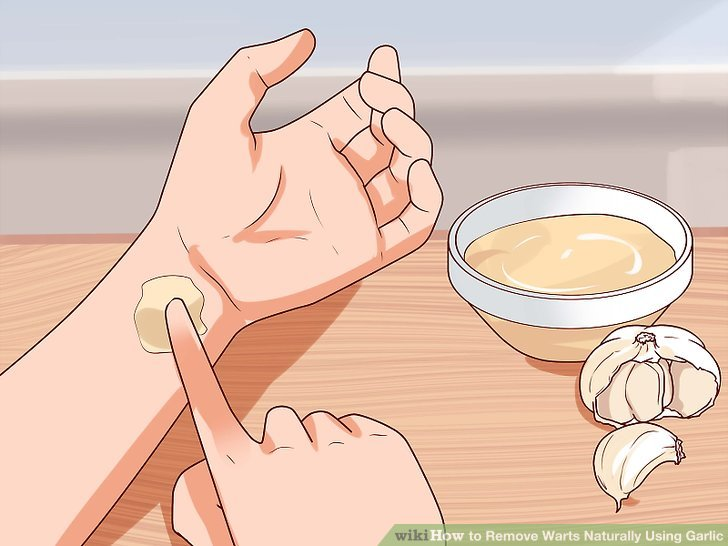 wart treatment with garlic