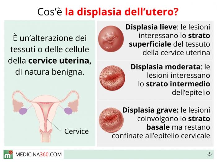 hpv collo utero sintomi)