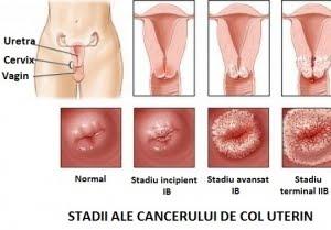 144618197 Lucrare Licenta Nursing Ia Bolnave Cu Cancer de Col Uterin