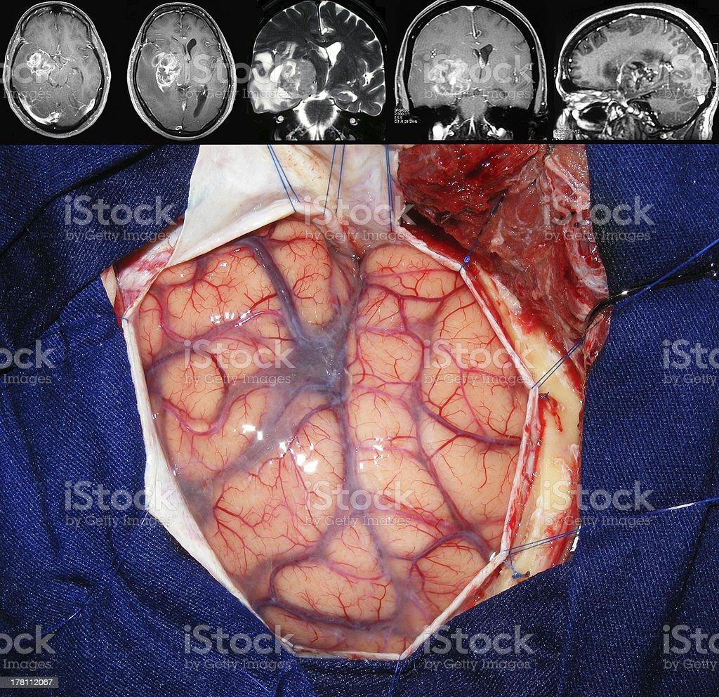 cancer cerebral cirurgia)