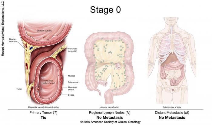rectosigmoid cancer tnm staging enterobius vermicularis caso clinico