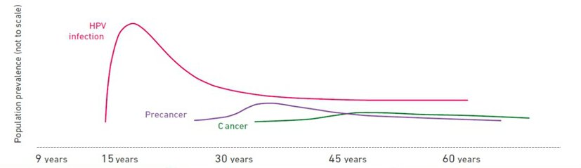hpv pre cancer stages