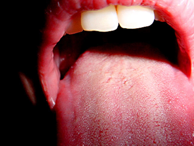 human papillomavirus in the mouth