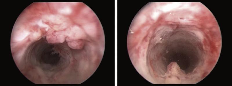 human papillomavirus urethritis)