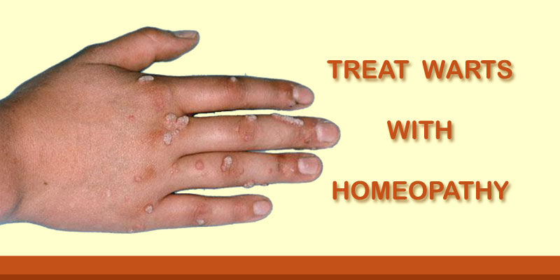 foot warts homeopathic remedy)