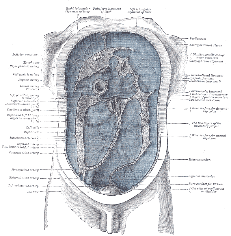 peritoneal cancer hernia
