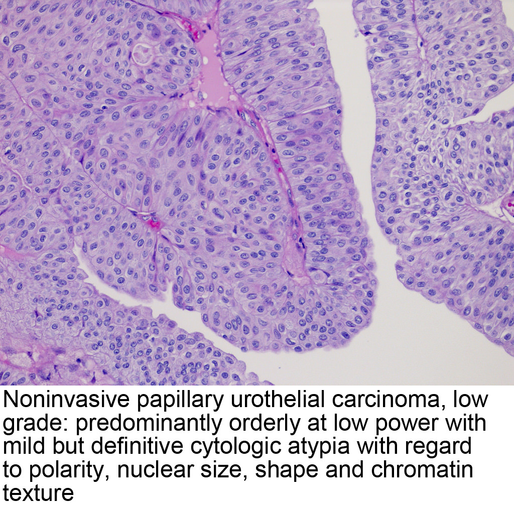 papillary urothelial carcinoma patho outline
