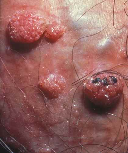papillomavirus donne des boutons