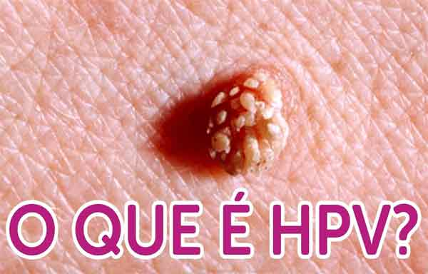 virus do papiloma humano (hpv) no homem wart virus images