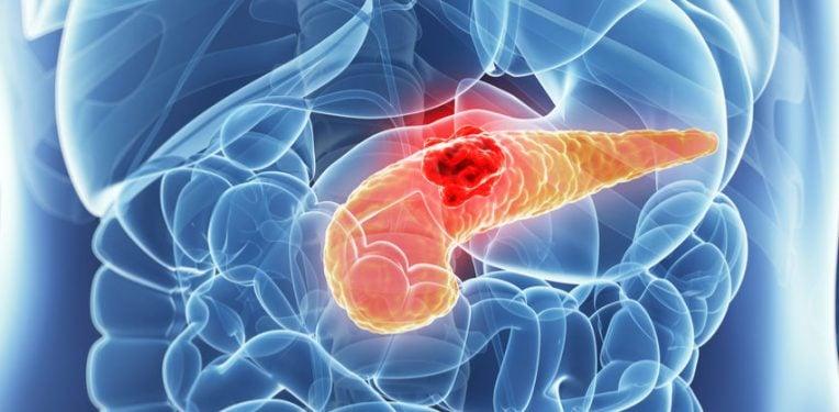 Cancer pancreatic, terapie revoluționară descoperită de americani | DCNews