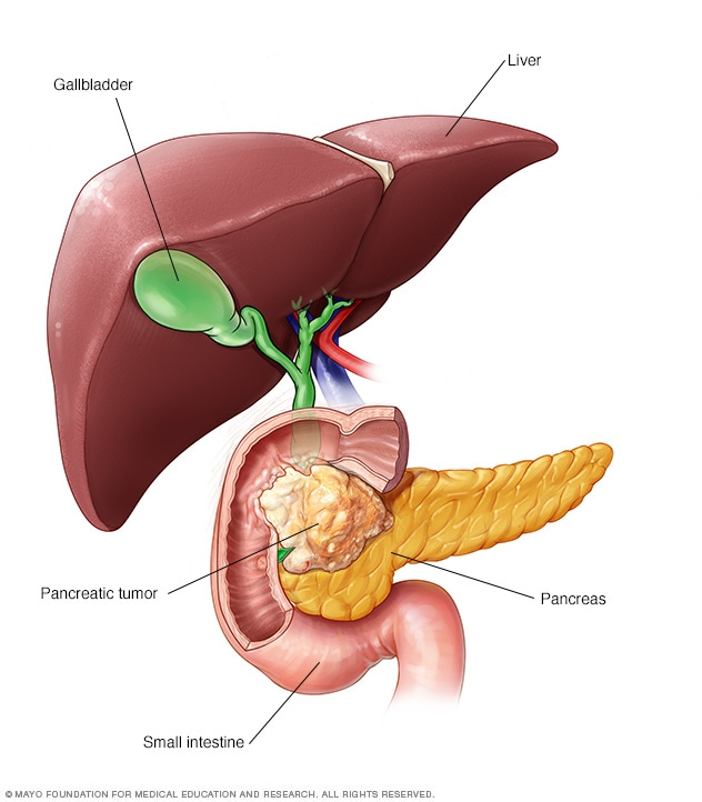 cancer de pancreas en la cabeza