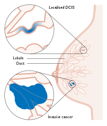 cancer mamar ductal