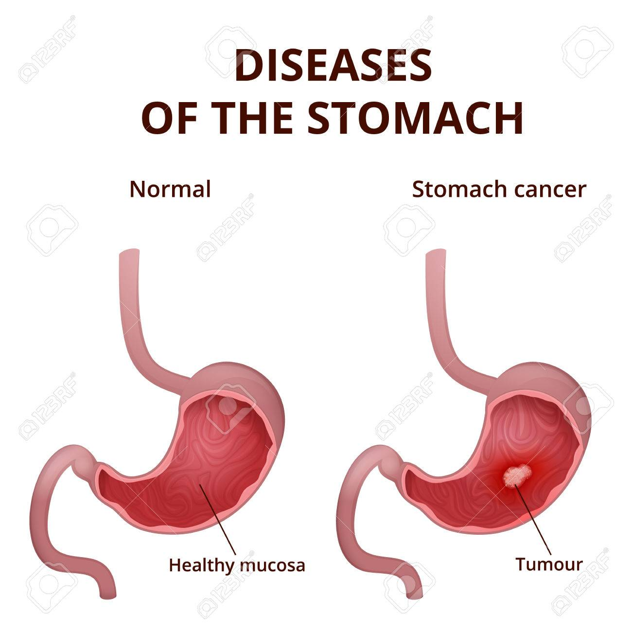 gastric cancer no symptoms)