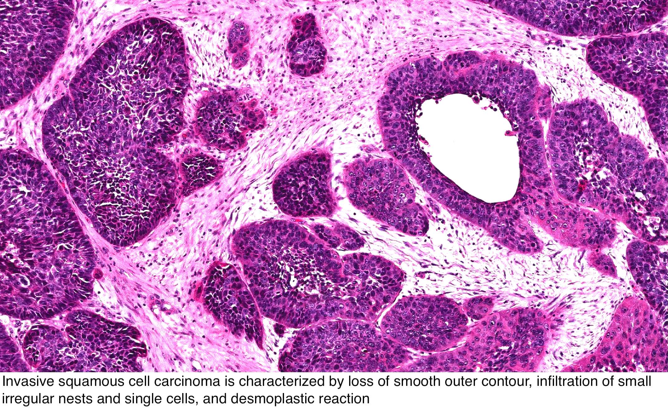 papilloma vs squamous cell carcinoma