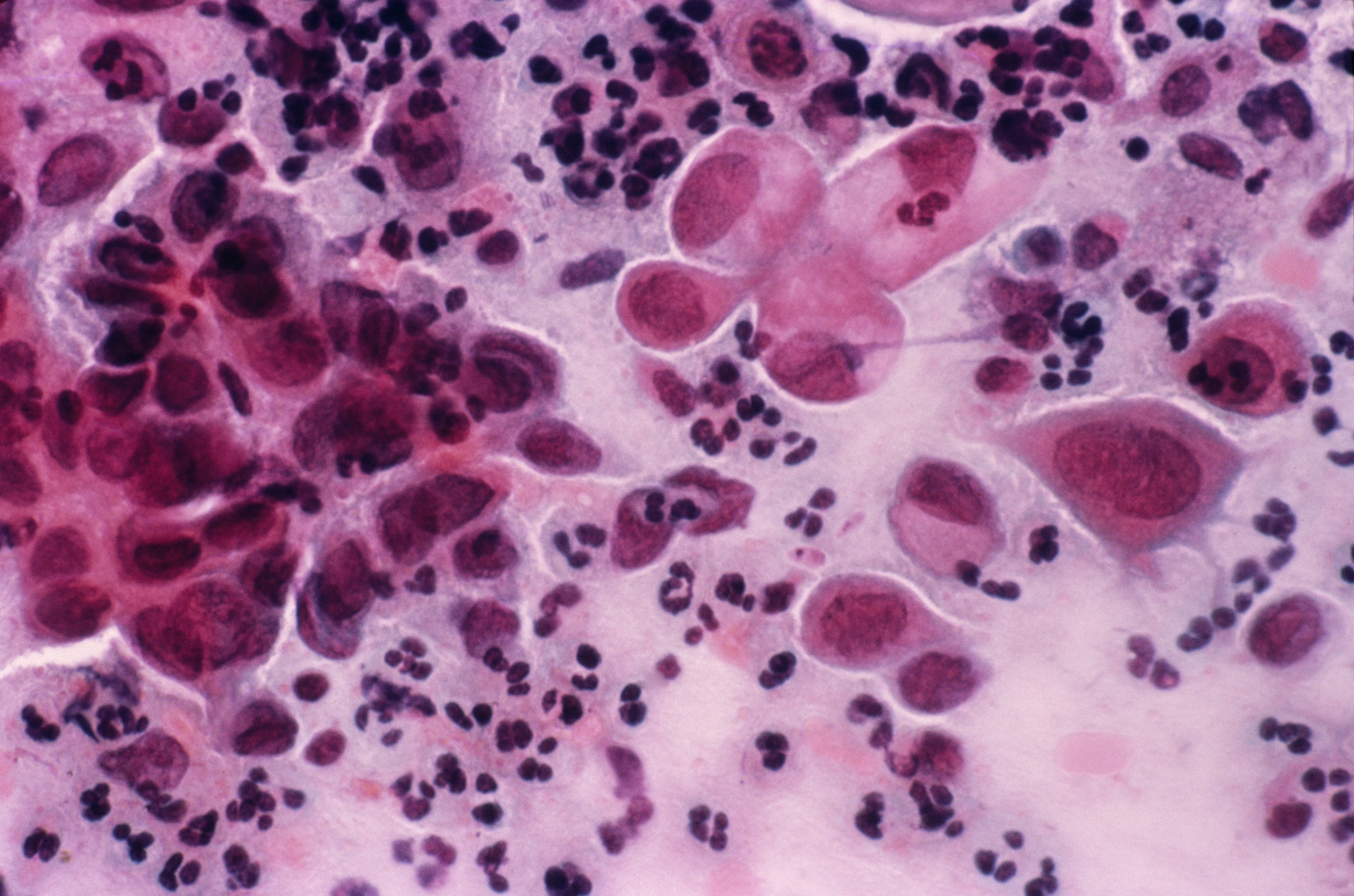 cancer cervical cells)