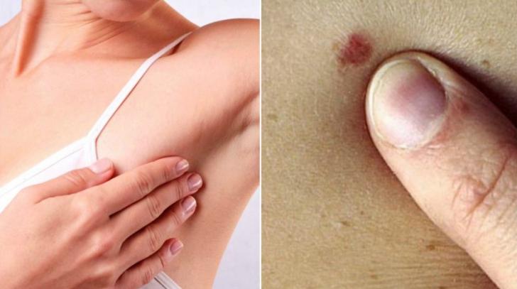 cancerul de piele simptome peritoneal cancer survivor