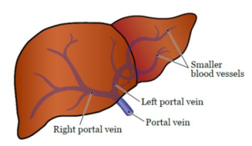 cancer in hepatic portal vein)