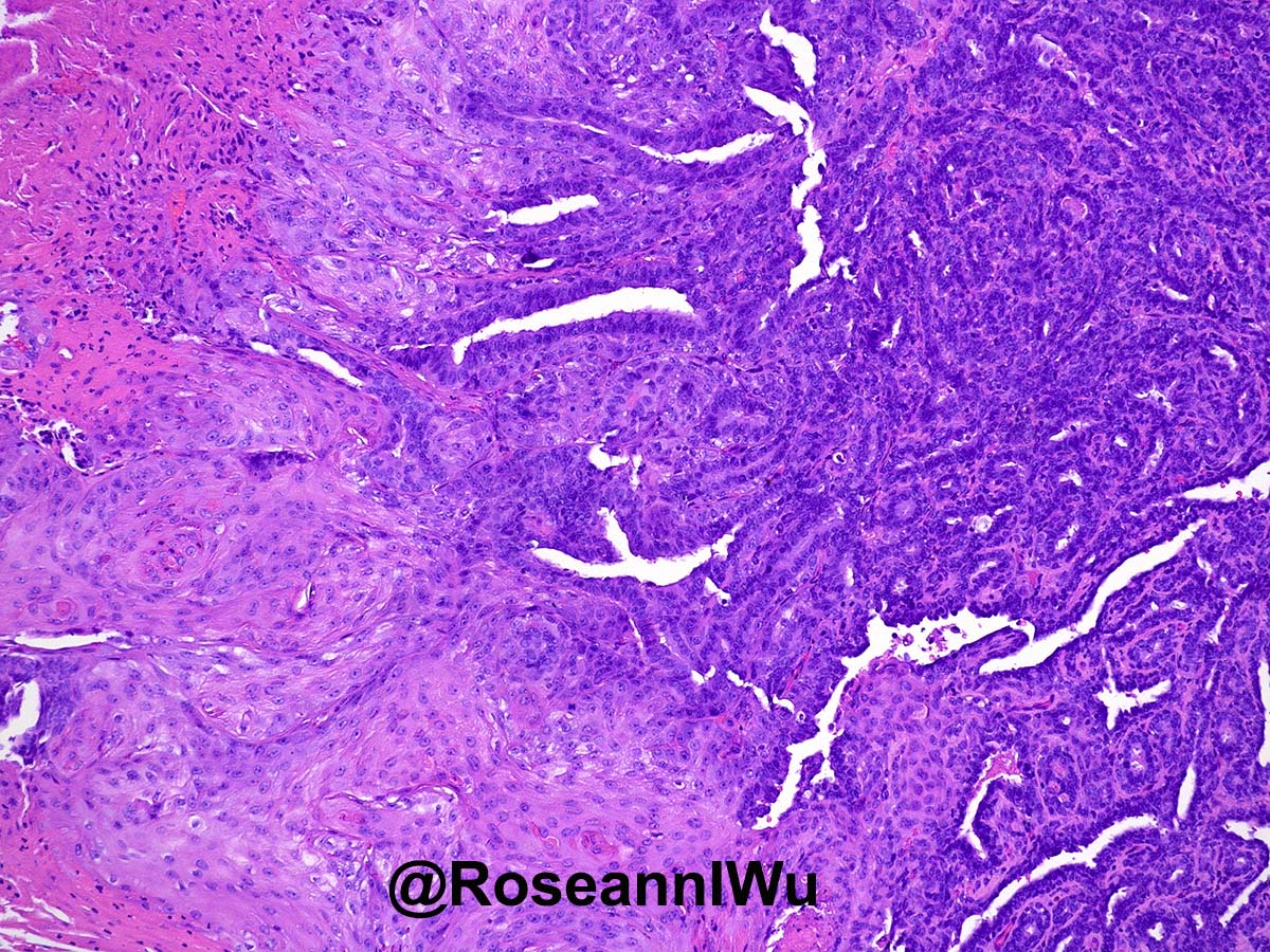 Rosen's Breast Pathology