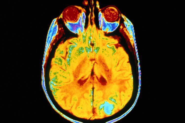 cancer cerebral etapa 4)